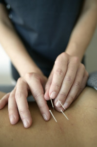 Acupuncture & Traditional Chinese Medicine, Olympia WA